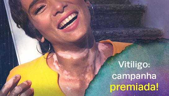 "Campanha ""Vitiligo na luta contra o preconceito"" da SBD é agraciada com o Annual International Business Awards"